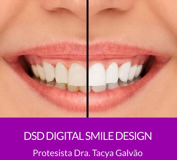 DSD- Digital Smile Design