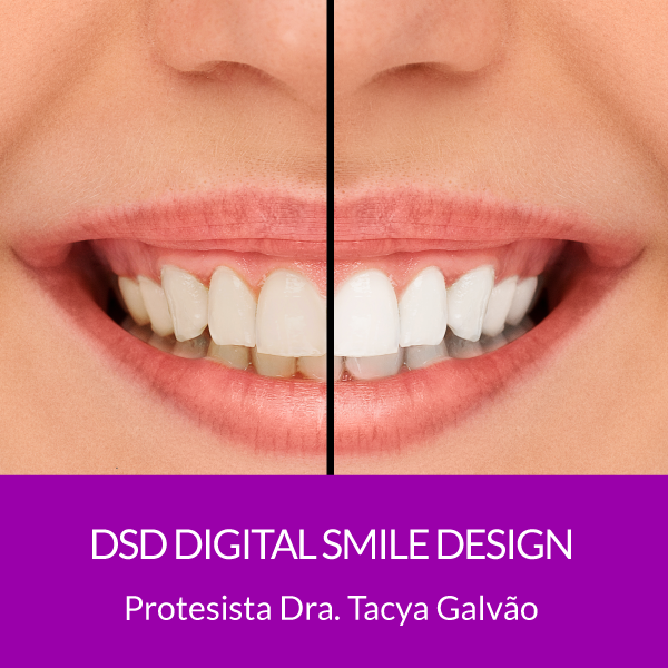 DSD- Digital Smile Design